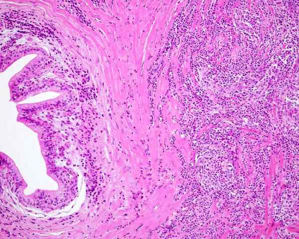 histology thalamus